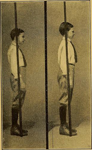 bad posture photo